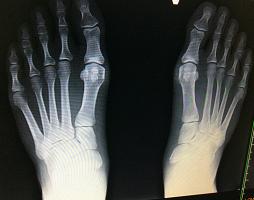 足の骨レントゲン