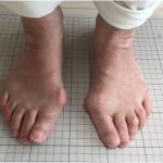 60歳外反母趾の足|サロン美足