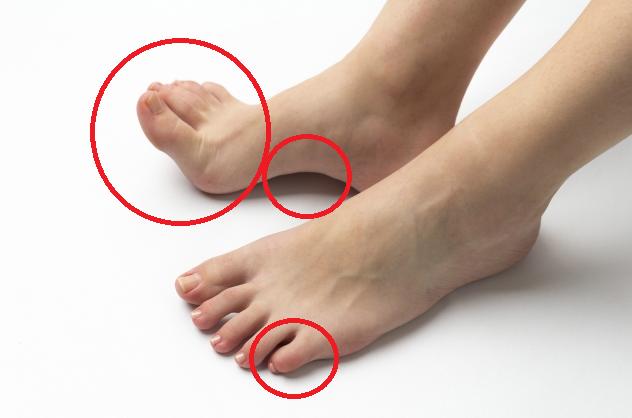 足小指まがり赤丸