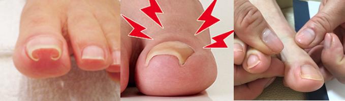 巻爪陥入爪|サロン美足