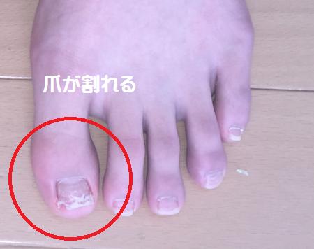 足の爪が割れる|サロン美足